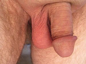 Try out penis enlargement for boosting confidence